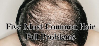 Hair Fall Problem