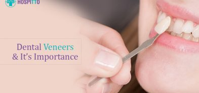 Importance of Dental Veneers