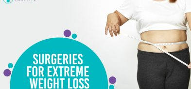 surgeries for weight loss